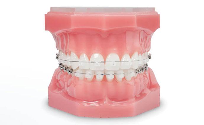Ortodoncia Estética - Clínica Micale