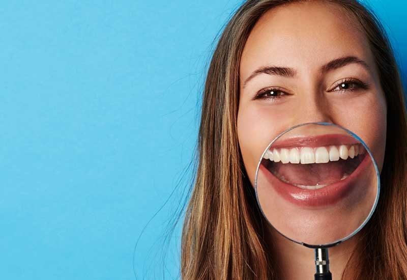 Retenedores de ortodoncia Vivera Retainers