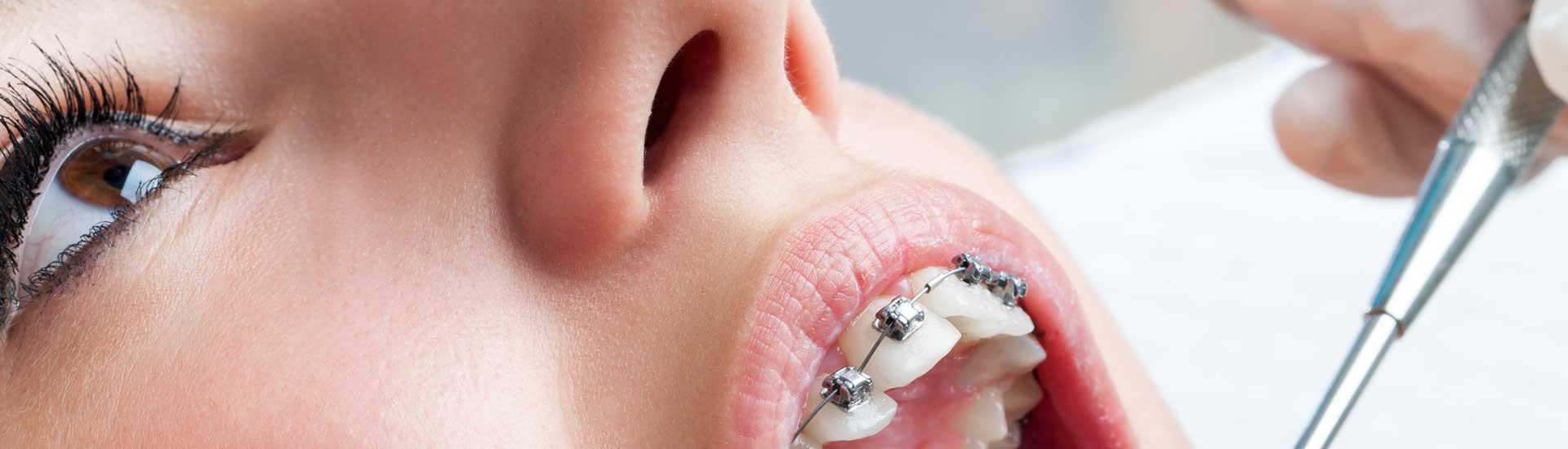 Brackets Metálicos - Clínica Dental Micale