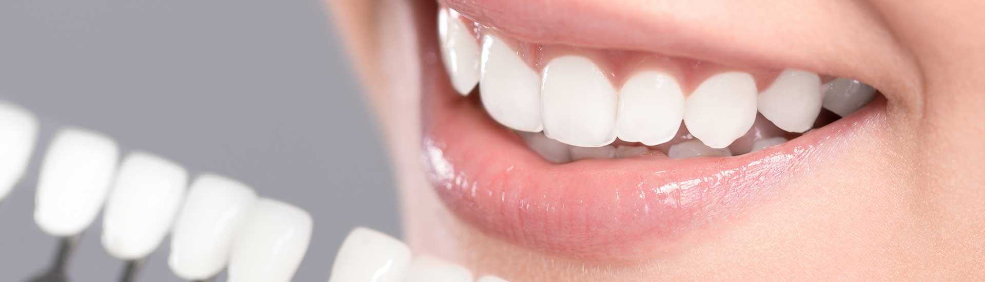 Carillas Dentales Madrid: Composite, Porcelana o Lumineers