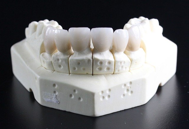 Precio medio de un implante dental Madrid