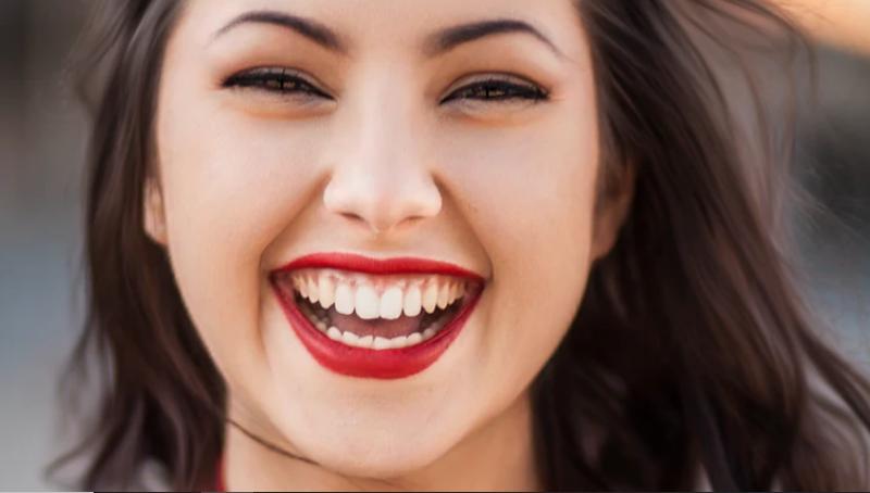 Fundas dentales en Madrid - Micale Dental